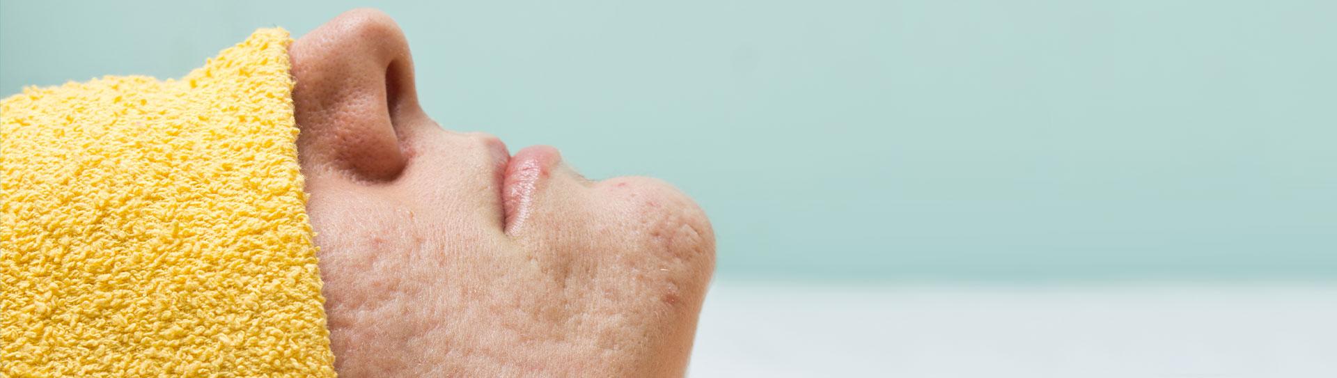 rimozione cicatrici dell'acne, trattamento acne