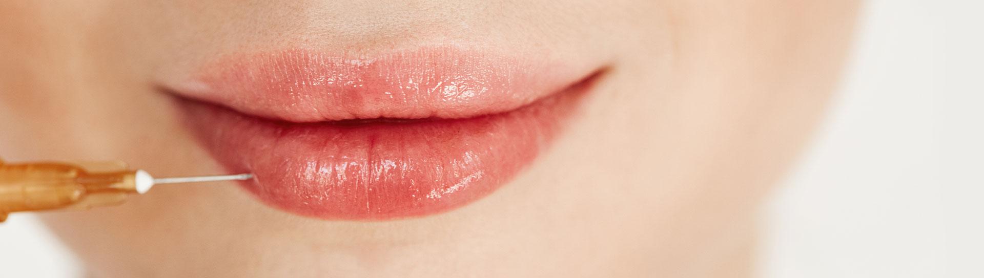 filler labbra, filler mento, filler guancia, filler mascella