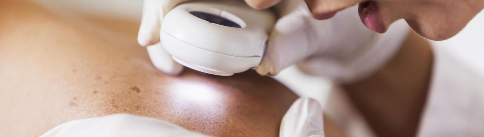 prevenzione del melanoma della pelle