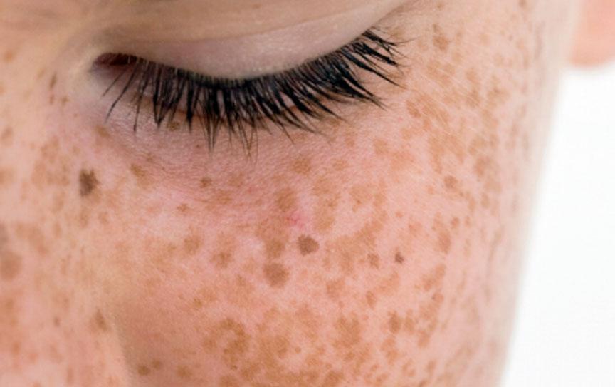 rimozione delle macchie della pelle