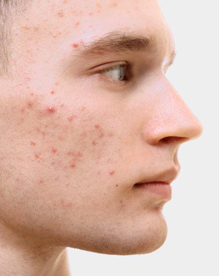 skinfarm, skinfarm siena, trattamento dell'acne, visita dermatologica dell'acne